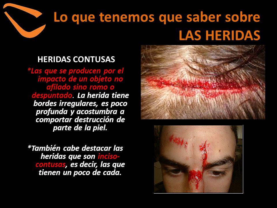 Lo que tenemos que saber sobre LAS HERIDAS *Además de las complicaciones propias de cada tipo de herida, todas tienen un peligro común: la infección.