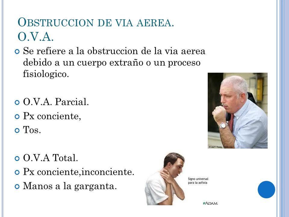 O BSTRUCCION DE VIA AEREA. O.V.A. Se refiere a la obstruccion de la via aerea debido a un cuerpo extraño o un proceso fisiologico. O.V.A. Parcial. Px