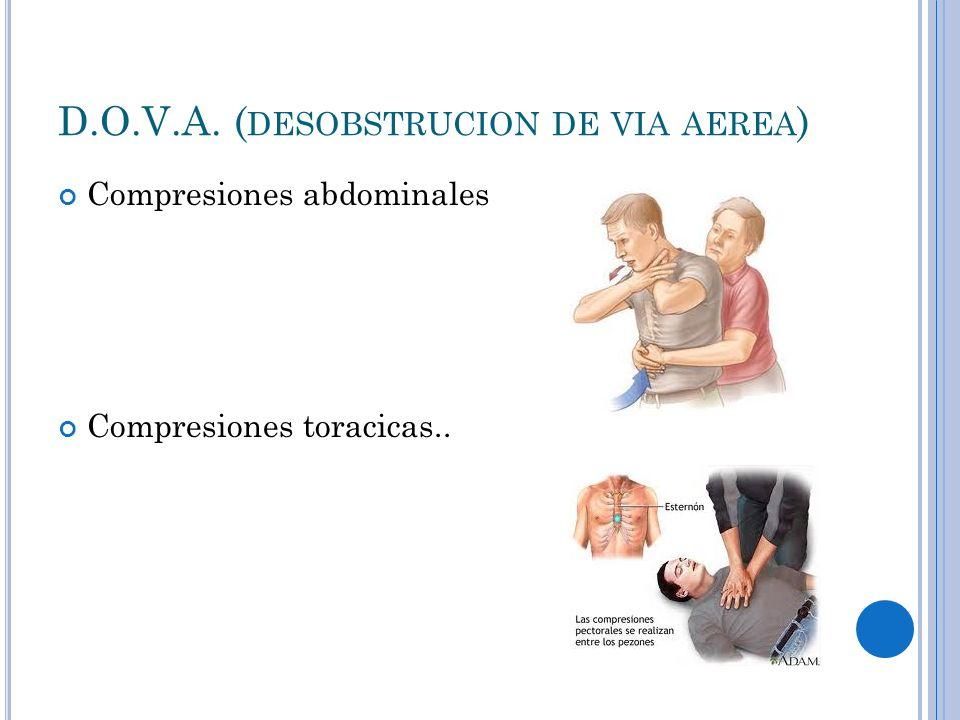 D.O.V.A. ( DESOBSTRUCION DE VIA AEREA ) Compresiones abdominales Compresiones toracicas..