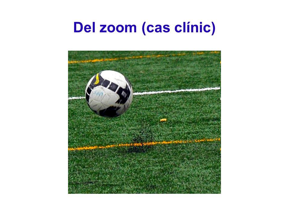 Del zoom (cas clínic)