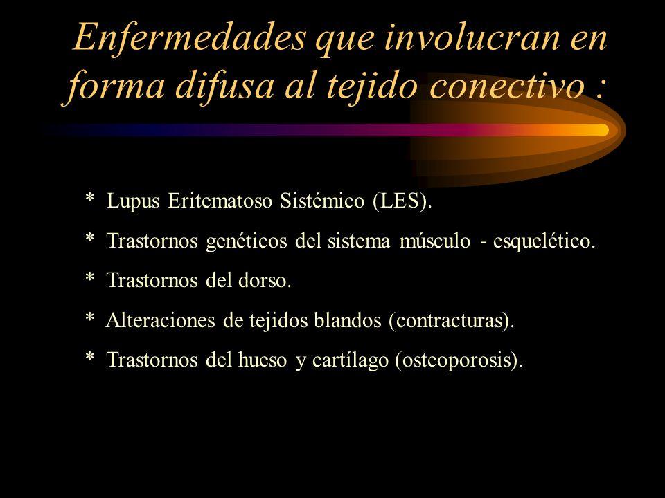 Enfermedades que involucran en forma difusa al tejido conectivo : * Lupus Eritematoso Sistémico (LES). * Trastornos genéticos del sistema músculo - es