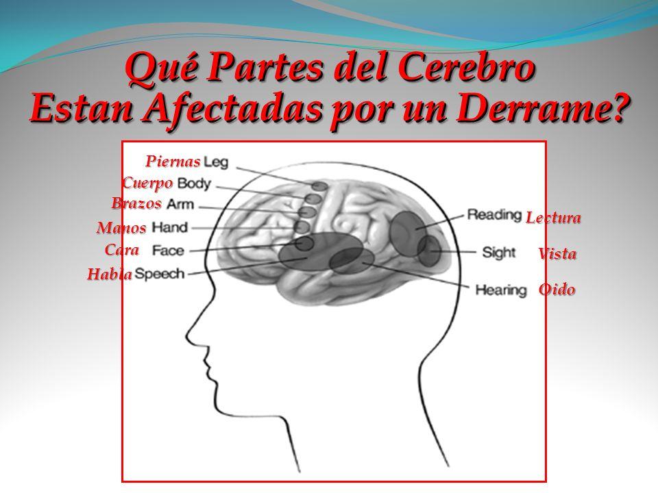 Qué Partes del Cerebro Estan Afectadas por un Derrame? Piernas Cuerpo Brazos Manos Cara Habla Lectura Vista Oido