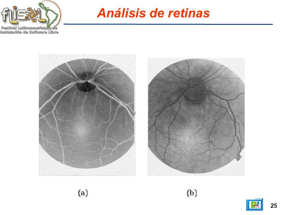 25 Análisis de retinas