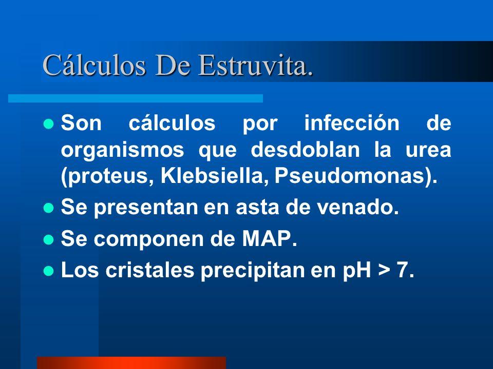 Cálculos De Estruvita. Son cálculos por infección de organismos que desdoblan la urea (proteus, Klebsiella, Pseudomonas). Se presentan en asta de vena