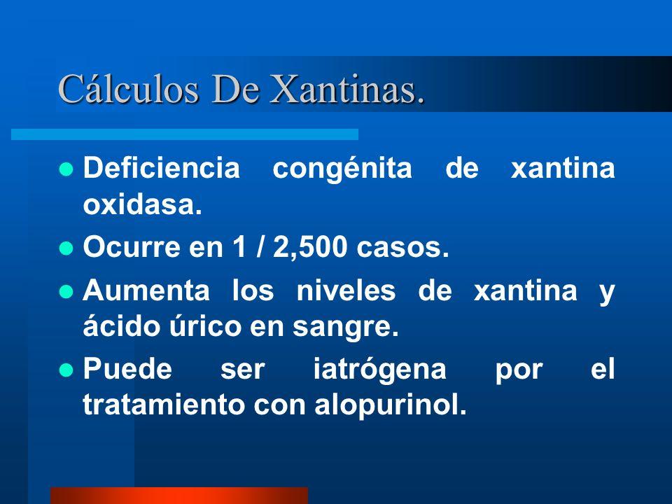 Cálculos De Xantinas. Deficiencia congénita de xantina oxidasa. Ocurre en 1 / 2,500 casos. Aumenta los niveles de xantina y ácido úrico en sangre. Pue