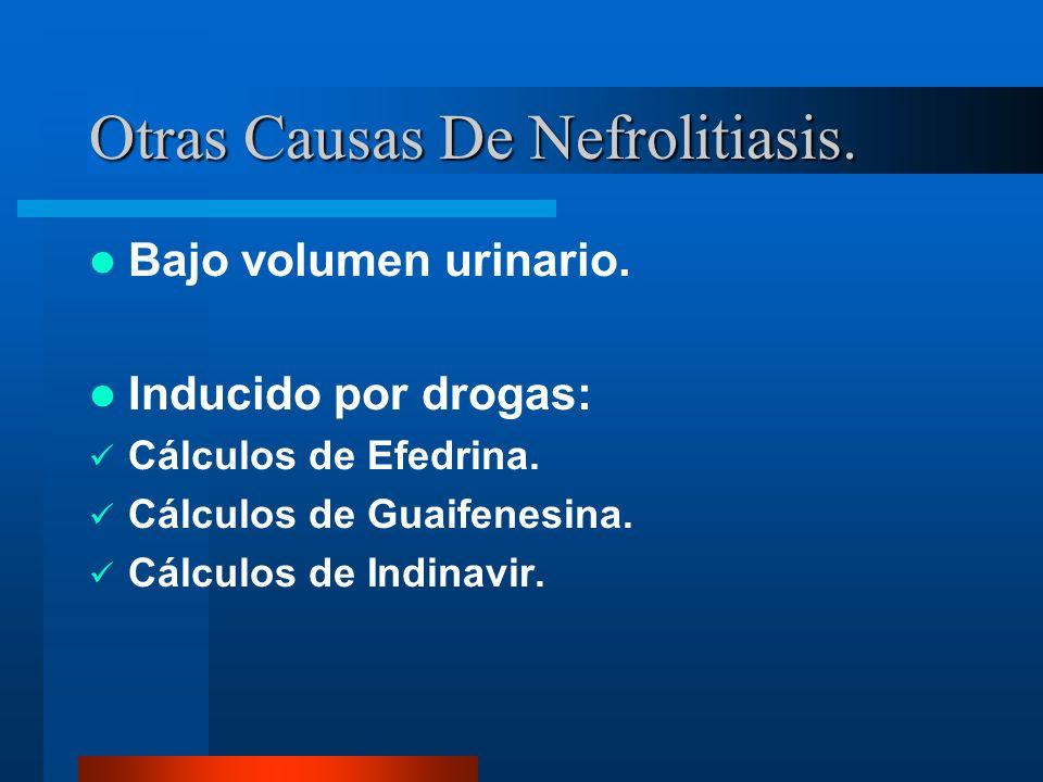 Otras Causas De Nefrolitiasis. Bajo volumen urinario. Inducido por drogas: Cálculos de Efedrina. Cálculos de Guaifenesina. Cálculos de Indinavir.