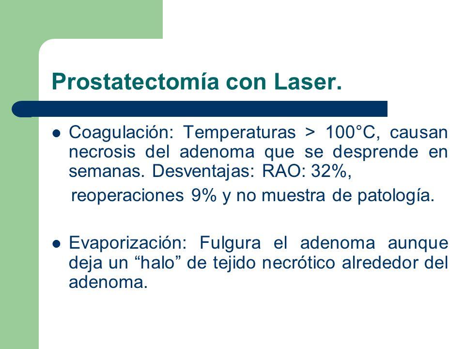 Ablación Ultrasónica.Reducción térmica del adenoma con temperaturas mayores de 100°C.