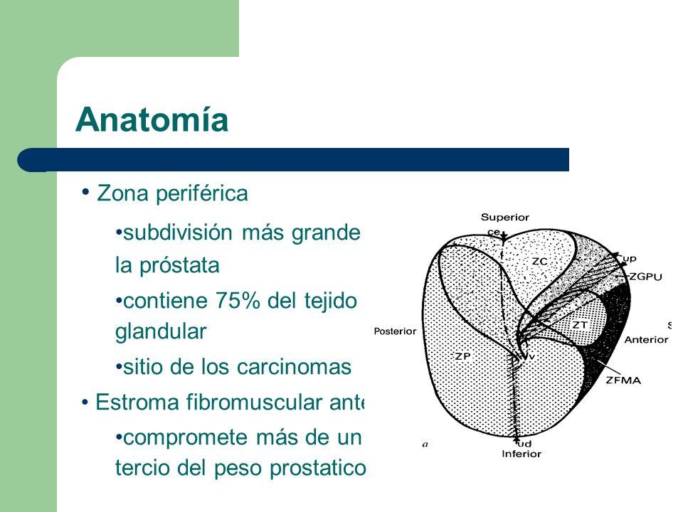 Anatomía Lowsley describe 2 lobulos laterales, anterior, posterior y medio Mc Neal describe zona periferica, zona central, estroma fibromuscular anterior, tejido preprostatico y zona de transicion