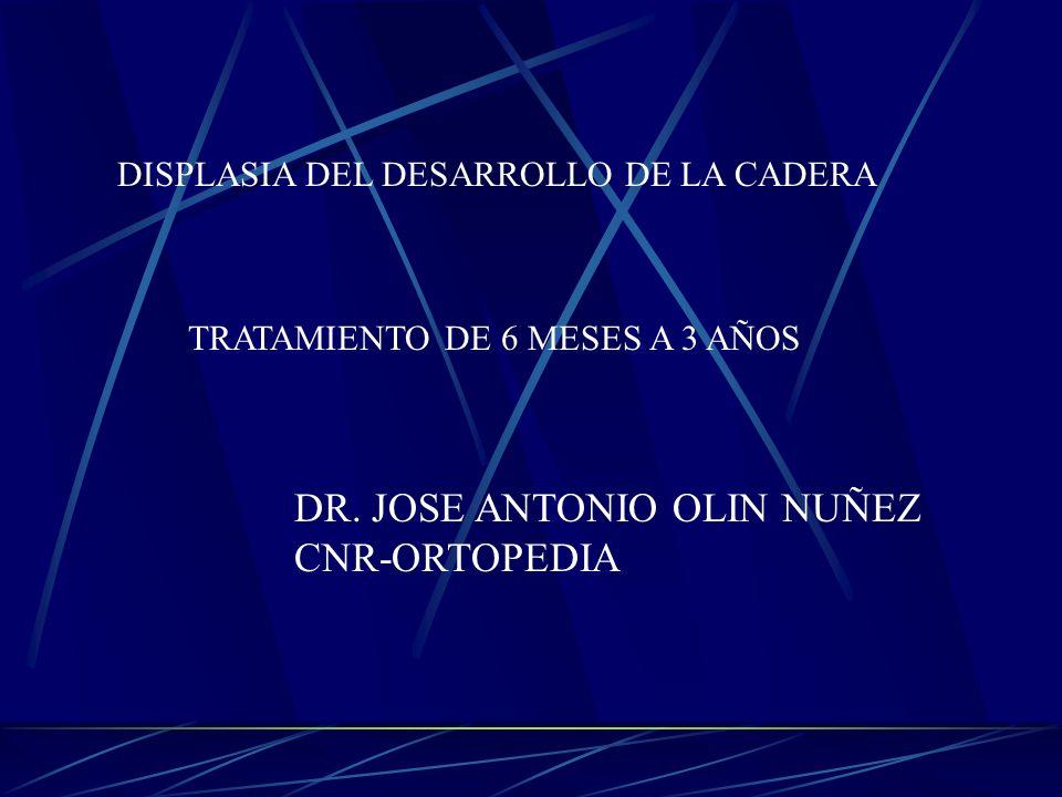 DISPLASIA DEL DESARROLLO DE LA CADERA TRATAMIENTO DE 6 MESES A 3 AÑOS DR. JOSE ANTONIO OLIN NUÑEZ CNR-ORTOPEDIA