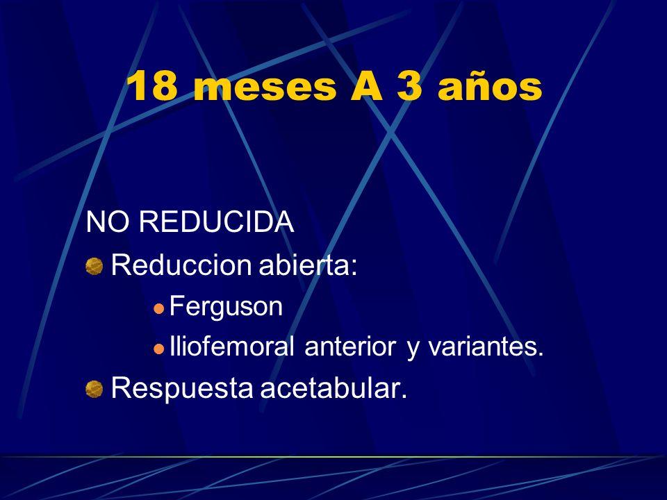 18 meses A 3 años NO REDUCIDA Reduccion abierta: Ferguson Iliofemoral anterior y variantes. Respuesta acetabular.