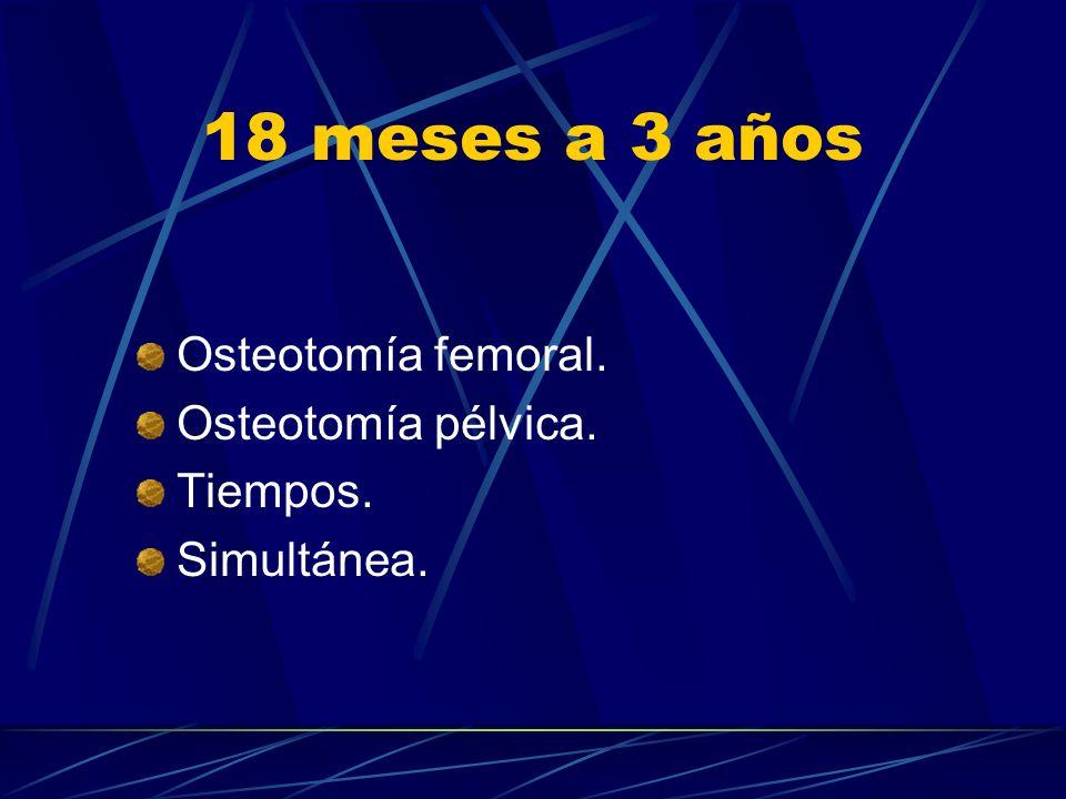 18 meses a 3 años Osteotomía femoral. Osteotomía pélvica. Tiempos. Simultánea.