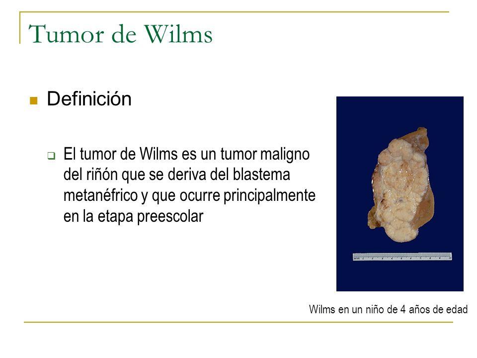 Tumor de Wilms Definición El tumor de Wilms es un tumor maligno del riñón que se deriva del blastema metanéfrico y que ocurre principalmente en la eta