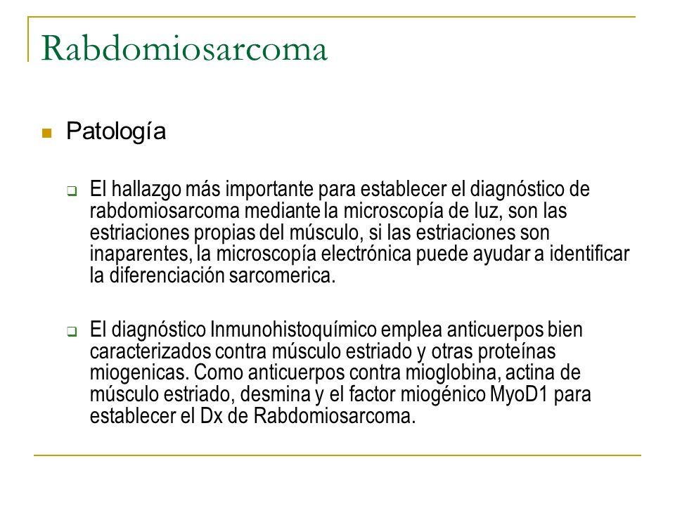 Rabdomiosarcoma Patología El hallazgo más importante para establecer el diagnóstico de rabdomiosarcoma mediante la microscopía de luz, son las estriac