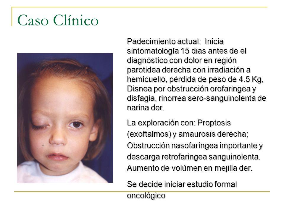 Caso Clínico Padecimiento actual: Inicia sintomatología 15 dias antes de el diagnóstico con dolor en región parotidea derecha con irradiación a hemicu