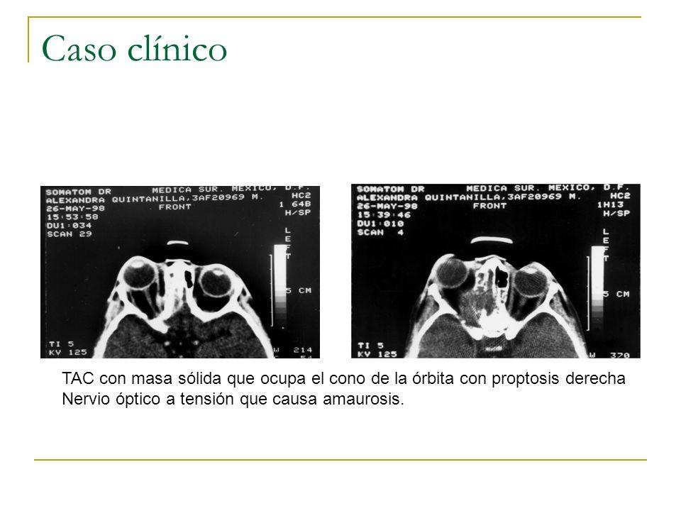 Caso clínico TAC con masa sólida que ocupa el cono de la órbita con proptosis derecha Nervio óptico a tensión que causa amaurosis.