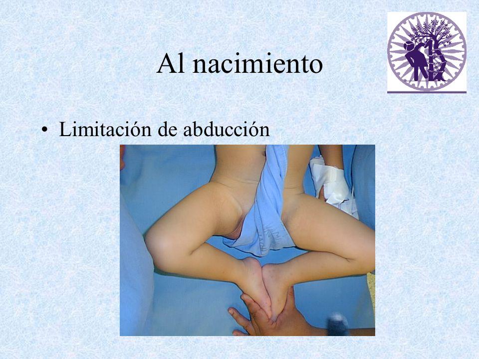 Al nacimiento Limitación de abducción