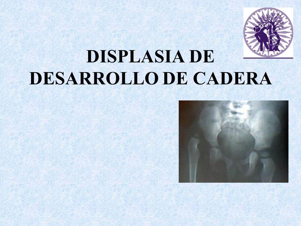Terminología Displasia o luxación congénita de cadera Displasia de desarrollo de cadera