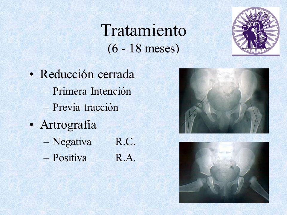 Tratamiento (6 - 18 meses) Reducción cerrada –Primera Intención –Previa tracción Artrografía –NegativaR.C. –PositivaR.A.