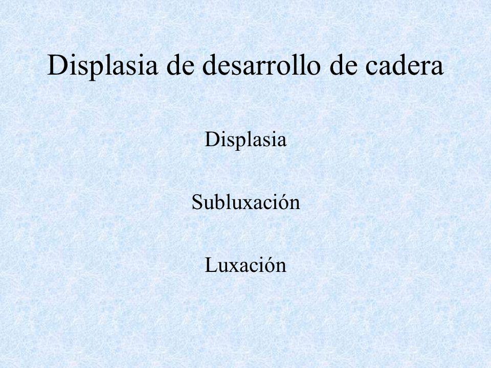 Displasia Subluxación Luxación