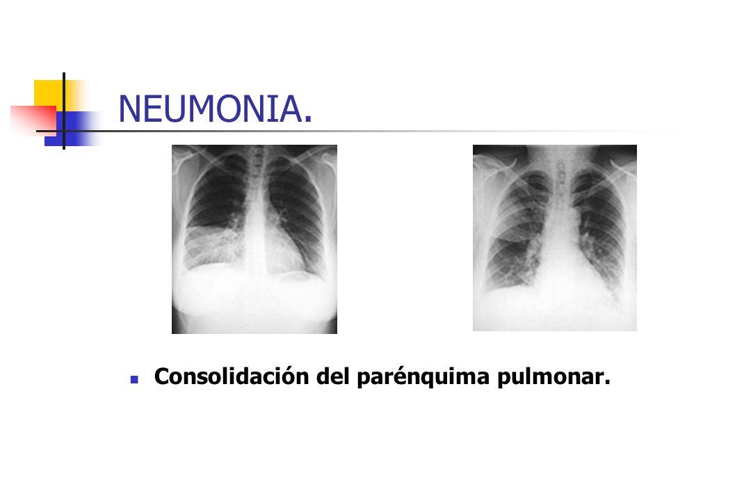 NEUMONIA. Consolidación del parénquima pulmonar.