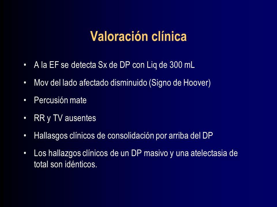 Hemotórax Traumatismos toracicos penetrantes y no penetrantes.