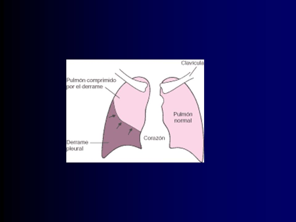 Fibrotórax Gruesa capa de tejido fibroso en a pl visceral.
