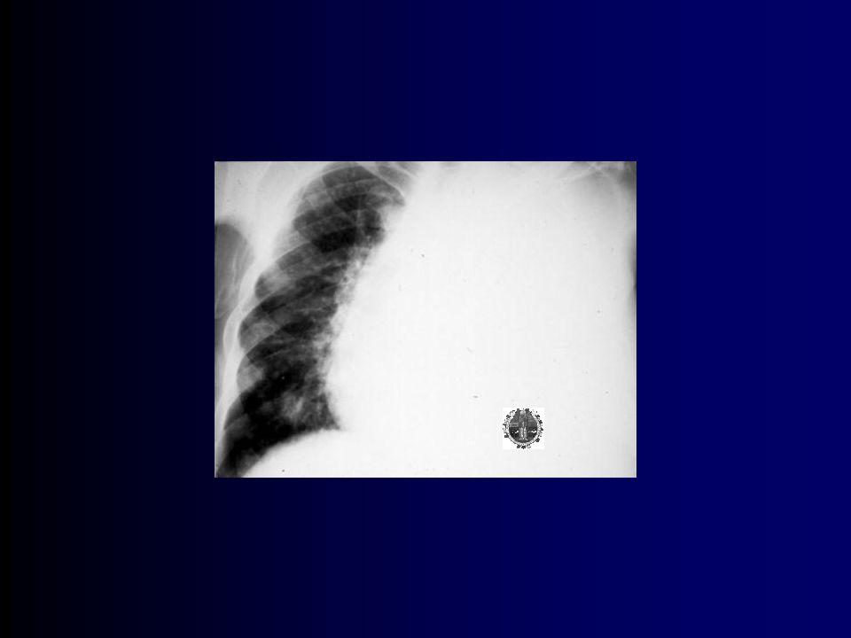 DP maligno Se diagnostica por la presencia de células malignas exfoliadas en el LP ó tejido obtenido por Bx percutánea, toracoscopia, toracotomia ó autopsia.