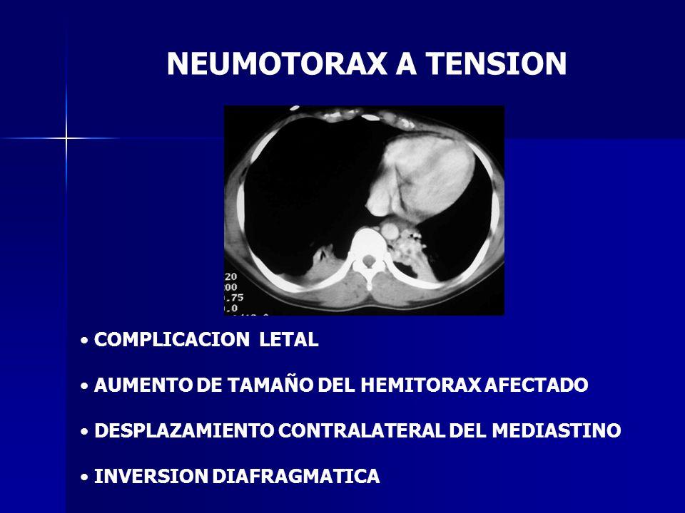 NEUMOTORAX A TENSION COMPLICACION LETAL AUMENTO DE TAMAÑO DEL HEMITORAX AFECTADO DESPLAZAMIENTO CONTRALATERAL DEL MEDIASTINO INVERSION DIAFRAGMATICA