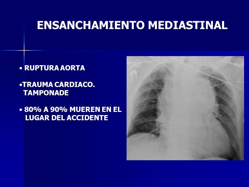 ENSANCHAMIENTO MEDIASTINAL RUPTURA AORTA TRAUMA CARDIACO. TAMPONADE 80% A 90% MUEREN EN EL LUGAR DEL ACCIDENTE