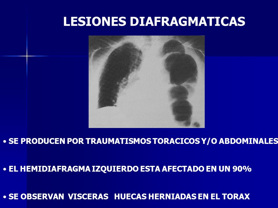 LESIONES DIAFRAGMATICAS SE PRODUCEN POR TRAUMATISMOS TORACICOS Y/O ABDOMINALES EL HEMIDIAFRAGMA IZQUIERDO ESTA AFECTADO EN UN 90% SE OBSERVAN VISCERAS