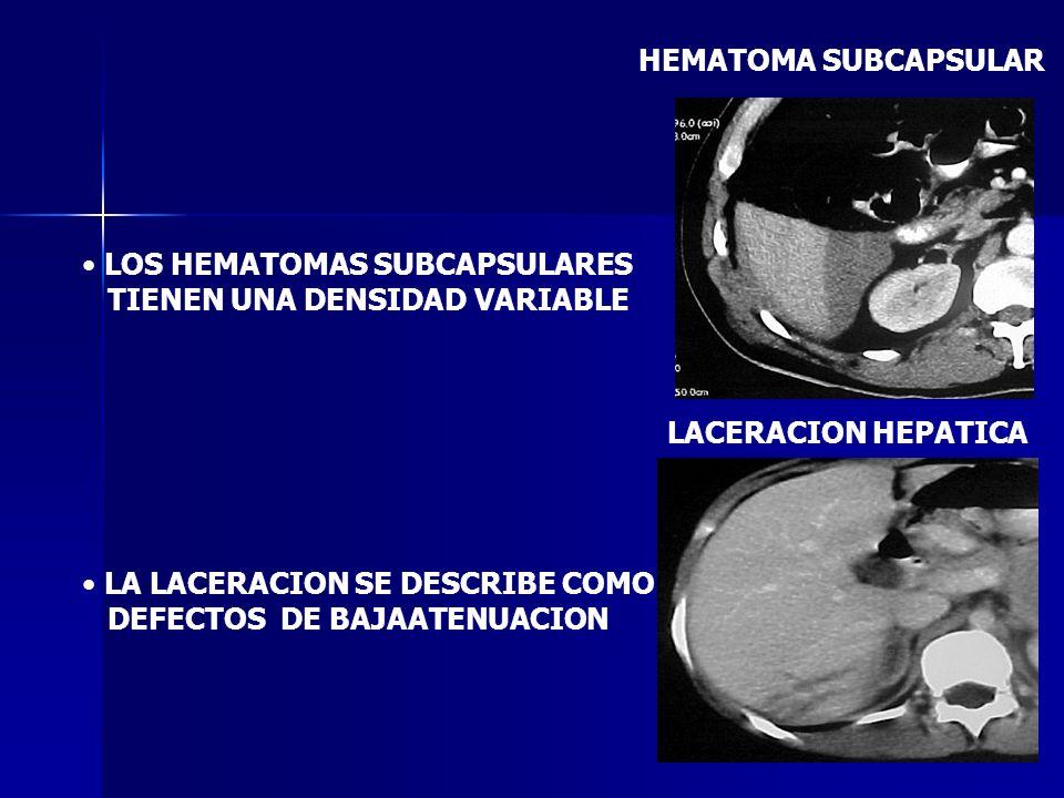 LOS HEMATOMAS SUBCAPSULARES TIENEN UNA DENSIDAD VARIABLE LA LACERACION SE DESCRIBE COMO DEFECTOS DE BAJAATENUACION LACERACION HEPATICA HEMATOMA SUBCAP