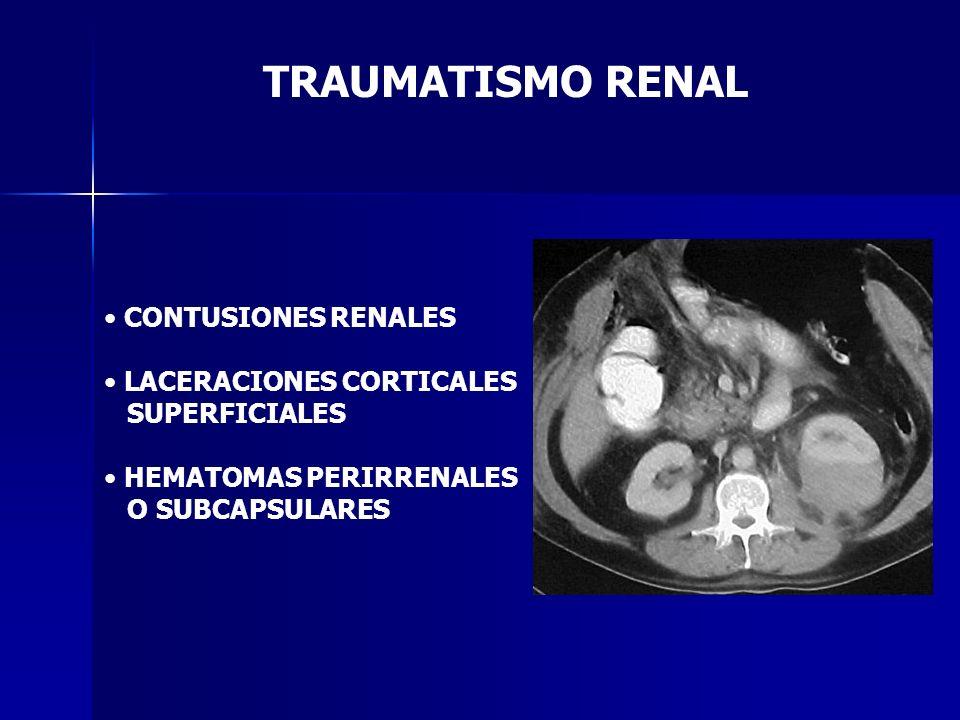 TRAUMATISMO RENAL CONTUSIONES RENALES LACERACIONES CORTICALES SUPERFICIALES HEMATOMAS PERIRRENALES O SUBCAPSULARES