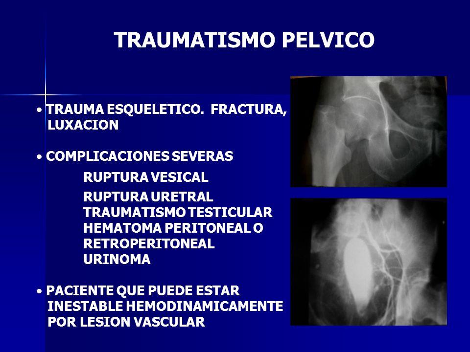 TRAUMATISMO PELVICO TRAUMA ESQUELETICO. FRACTURA, LUXACION COMPLICACIONES SEVERAS RUPTURA VESICAL RUPTURA URETRAL TRAUMATISMO TESTICULAR HEMATOMA PERI