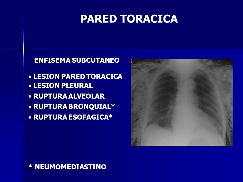 PARED TORACICA ENFISEMA SUBCUTANEO LESION PARED TORACICA LESION PLEURAL RUPTURA ALVEOLAR RUPTURA BRONQUIAL* RUPTURA ESOFAGICA* * NEUMOMEDIASTINO