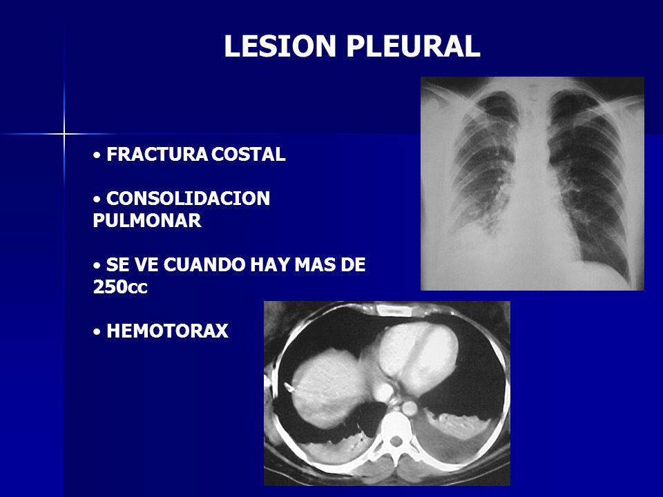 LESION PLEURAL FRACTURA COSTAL CONSOLIDACION PULMONAR SE VE CUANDO HAY MAS DE 250cc HEMOTORAX