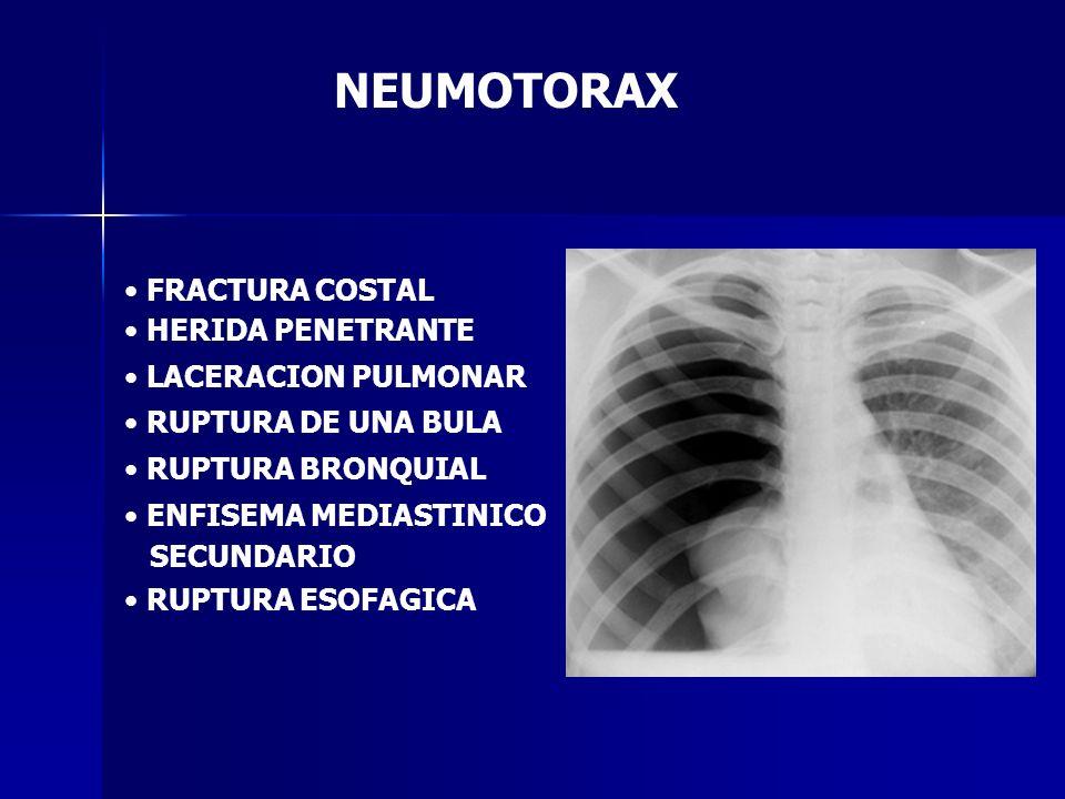 NEUMOTORAX FRACTURA COSTAL HERIDA PENETRANTE LACERACION PULMONAR RUPTURA DE UNA BULA RUPTURA BRONQUIAL ENFISEMA MEDIASTINICO SECUNDARIO RUPTURA ESOFAG