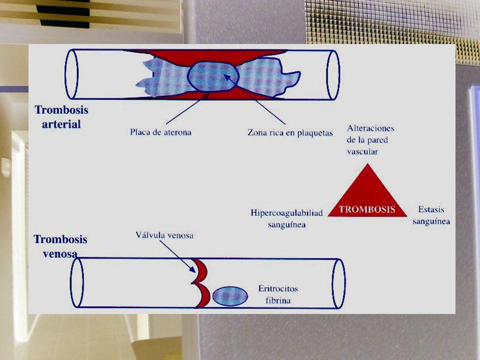 TROMBOEMBOLIA PULMONAR OBJETIVOS DE TRATAMIENTO: Prevenir embolismo pulmonar fatal, evitar el Sx postrombótico, la hipertensión pulmonar, la recurrenc