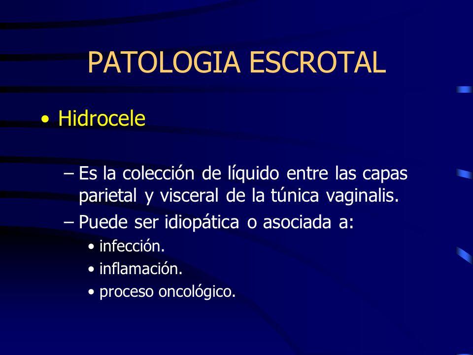 Hidrocele –Es la colección de líquido entre las capas parietal y visceral de la túnica vaginalis. –Puede ser idiopática o asociada a: infección. infla