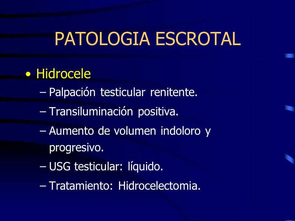 Hidrocele –Palpación testicular renitente. –Transiluminación positiva. –Aumento de volumen indoloro y progresivo. –USG testicular: líquido. –Tratamien