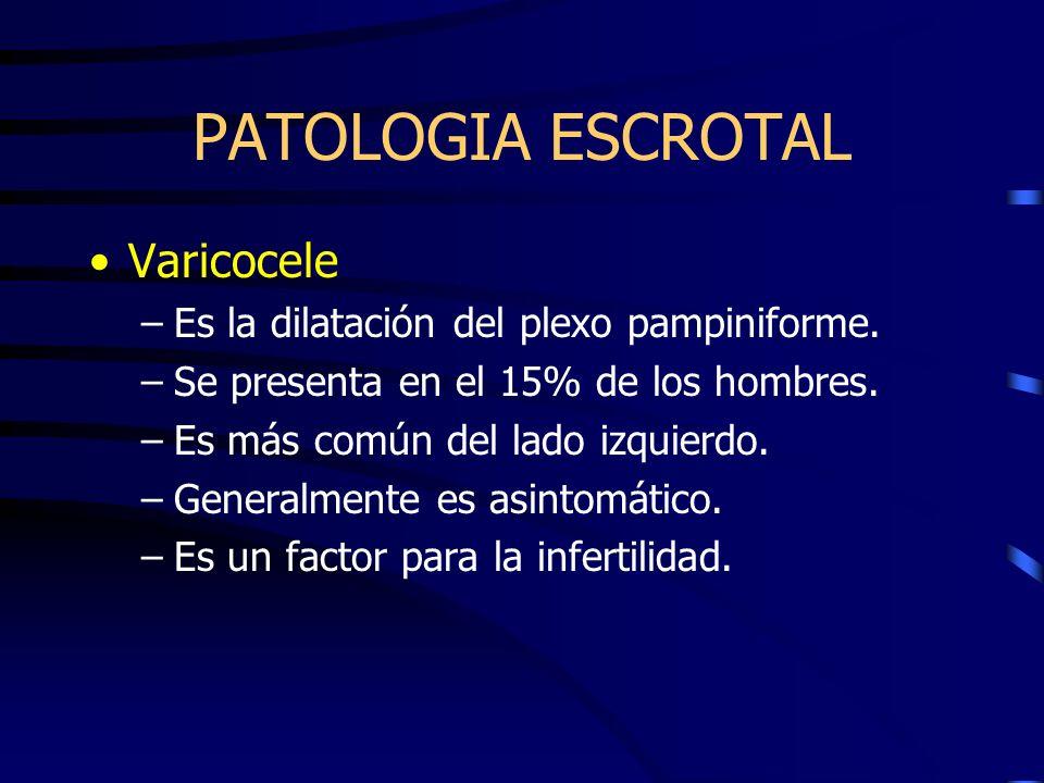 PATOLOGIA ESCROTAL Varicocele –Es la dilatación del plexo pampiniforme. –Se presenta en el 15% de los hombres. –Es más común del lado izquierdo. –Gene