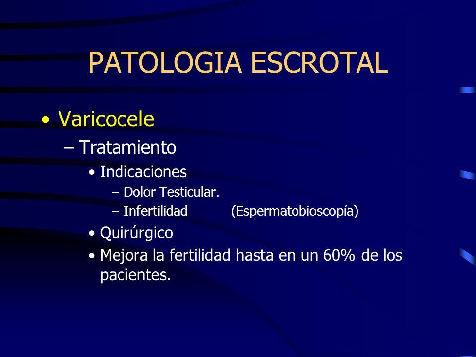 Varicocele –Tratamiento Indicaciones –Dolor Testicular. –Infertilidad(Espermatobioscopía) Quirúrgico Mejora la fertilidad hasta en un 60% de los pacie