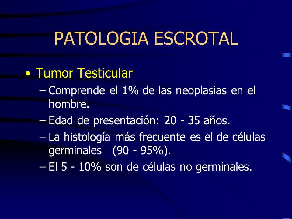 PATOLOGIA ESCROTAL Tumor Testicular –Comprende el 1% de las neoplasias en el hombre. –Edad de presentación: 20 - 35 años. –La histología más frecuente