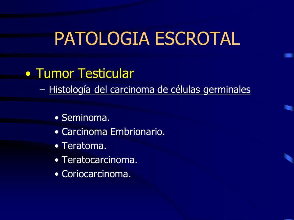 PATOLOGIA ESCROTAL Tumor Testicular –Histología del carcinoma de células germinales Seminoma. Carcinoma Embrionario. Teratoma. Teratocarcinoma. Corioc