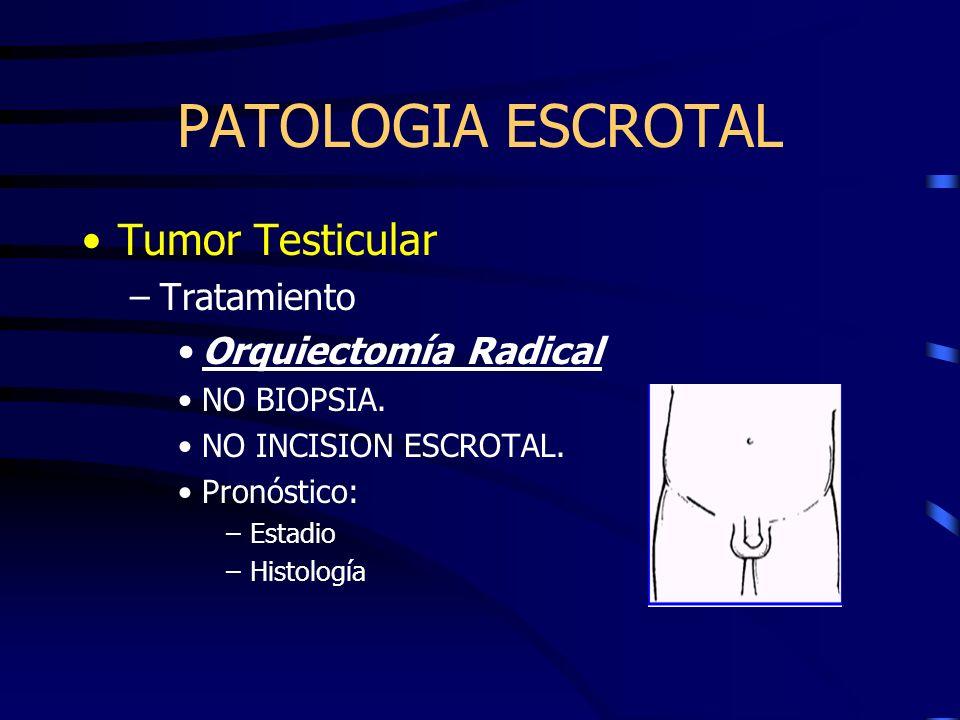 Tumor Testicular –Tratamiento Orquiectomía Radical NO BIOPSIA. NO INCISION ESCROTAL. Pronóstico: –Estadio –Histología