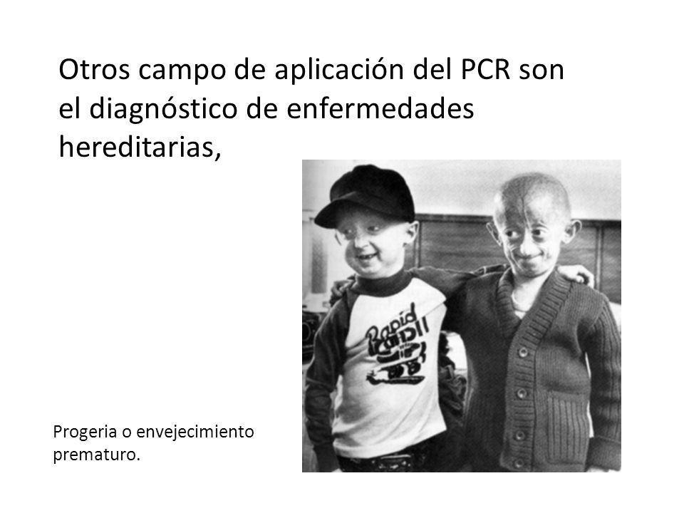 Otros campo de aplicación del PCR son el diagnóstico de enfermedades hereditarias, Progeria o envejecimiento prematuro.