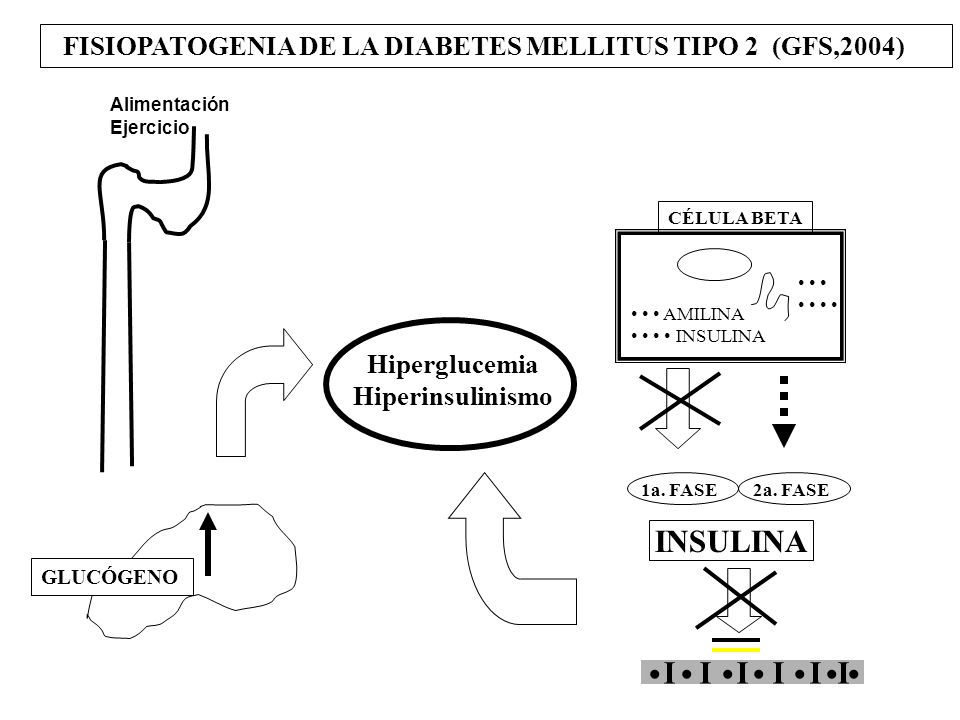 Hiperglucemia Hiperinsulinismo FISIOPATOGENIA DE LA DIABETES MELLITUS TIPO 2 (GFS,2004) I I I I I I Alimentación Ejercicio CÉLULA BETA GLUCÓGENO INSUL