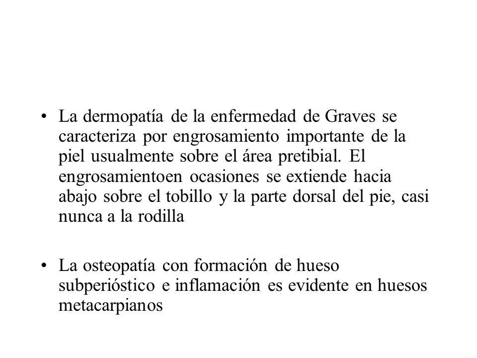 La dermopatía de la enfermedad de Graves se caracteriza por engrosamiento importante de la piel usualmente sobre el área pretibial. El engrosamientoen