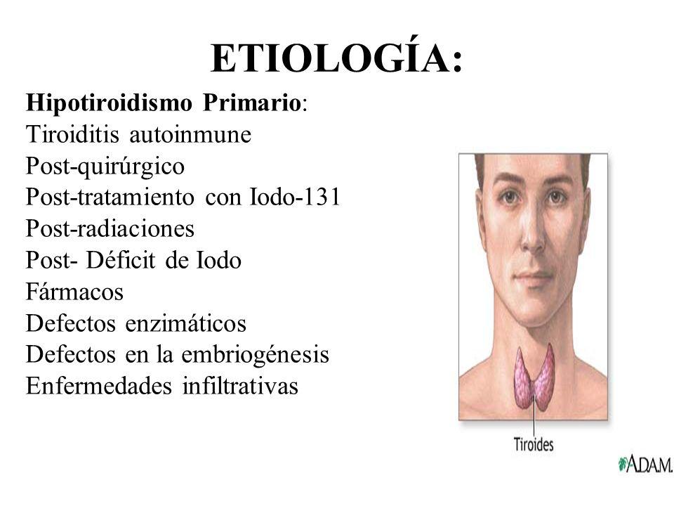 ETIOLOGÍA: Hipotiroidismo Primario: Tiroiditis autoinmune Post-quirúrgico Post-tratamiento con Iodo-131 Post-radiaciones Post- Déficit de Iodo Fármaco