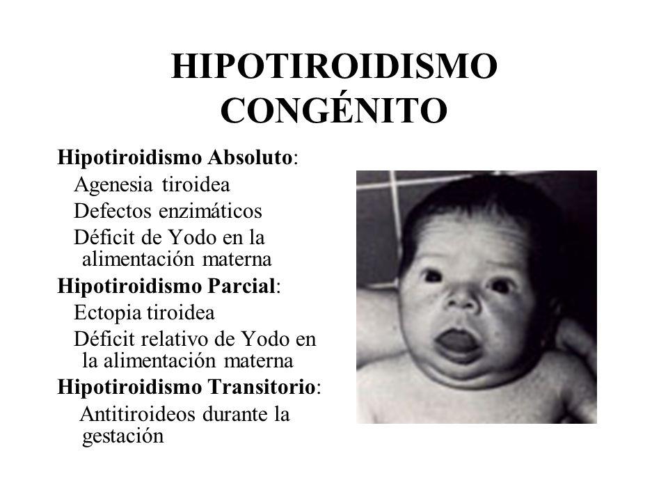 HIPOTIROIDISMO CONGÉNITO Hipotiroidismo Absoluto: Agenesia tiroidea Defectos enzimáticos Déficit de Yodo en la alimentación materna Hipotiroidismo Par