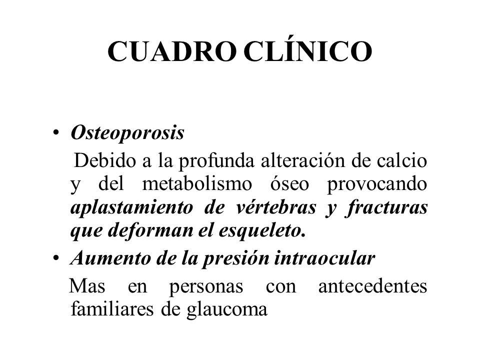 CUADRO CLÍNICO Osteoporosis Debido a la profunda alteración de calcio y del metabolismo óseo provocando aplastamiento de vértebras y fracturas que def